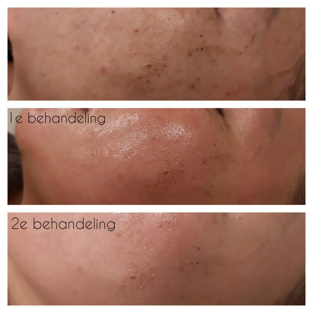Microneedling BB Glow whitening behandeling